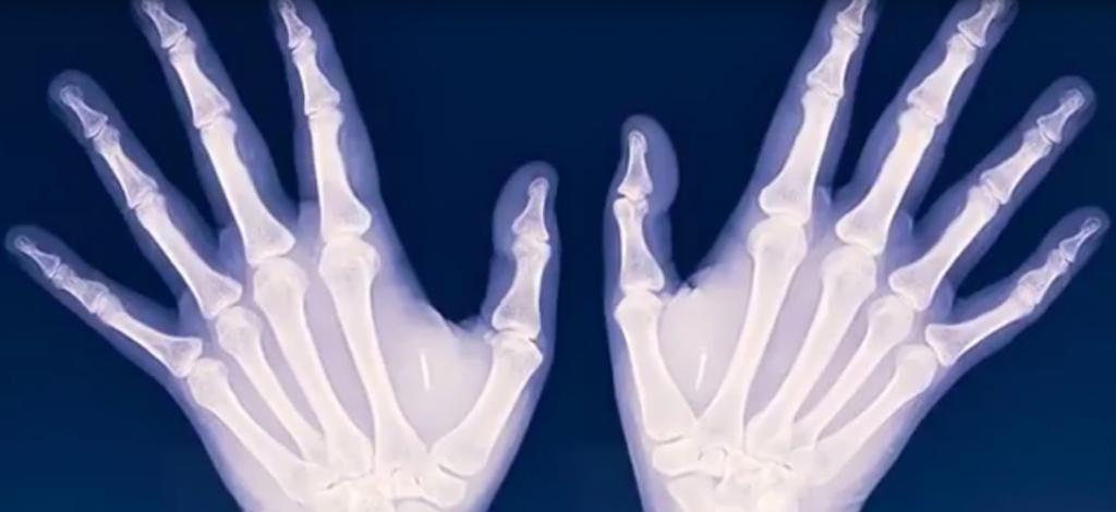 Une radio des mains de Shanti Korporaal montre les micropuces implantées : Capture d'écran Slate.fr